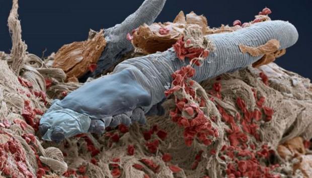 Αυτά τα Μικροσκοπικά Έντομα Ζουν στο Πρόσωπο Όλων μας!