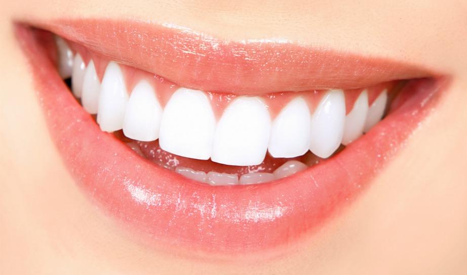 Ποιος δε θέλει ένα τέτοιο λαμπερό χαμόγελο;