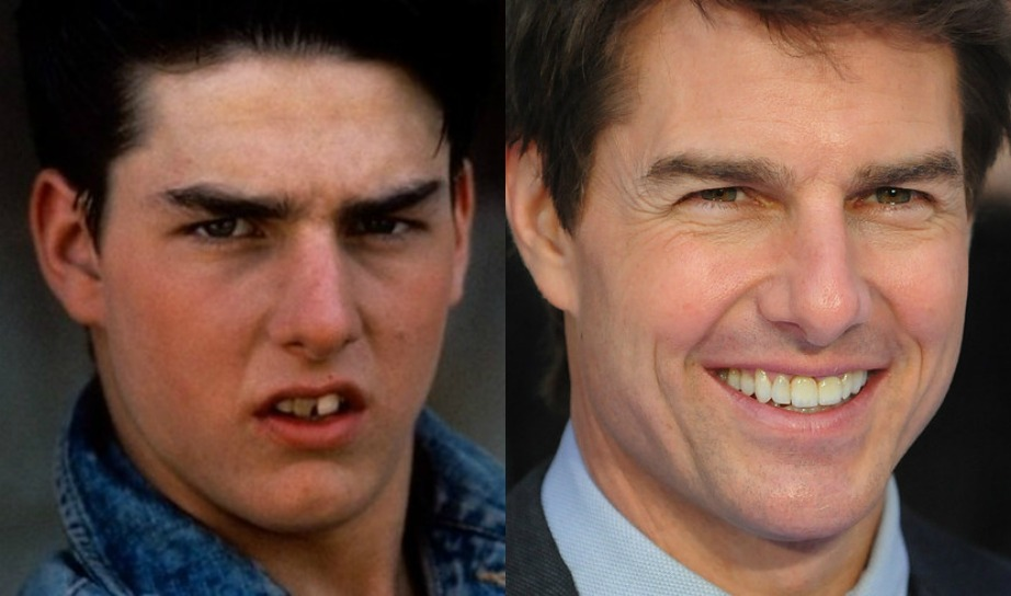 Δείτε πόση διαφορά έχει το χαμόγελο του Tom Cruise τώρα συγκριτικά με όταν ήταν πιο νέος.