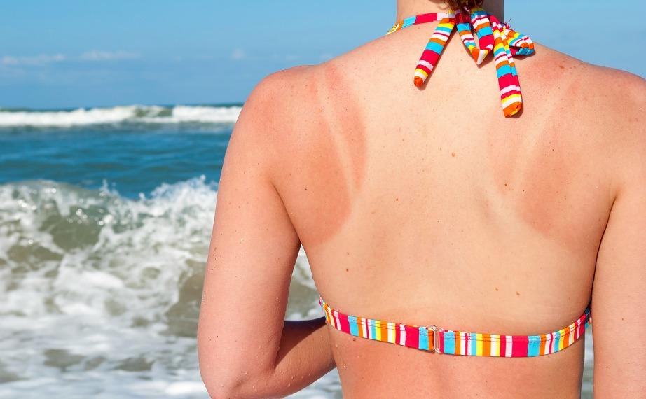 Περιποιηθείτε το σώμα σας σωστά μετά από τη θάλασσα και τον ήλιο.