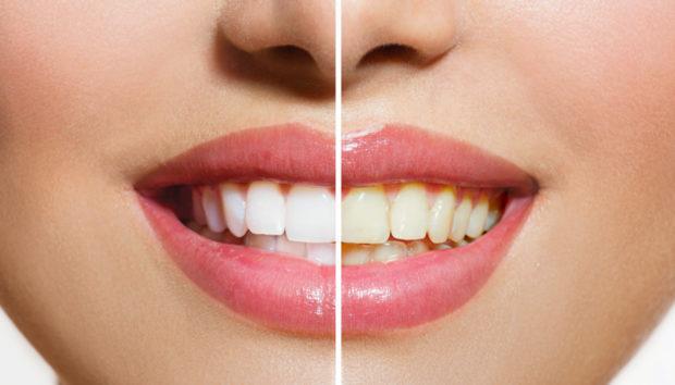 Αποκτήσετε τα πιο Λευκά Δόντια σε Ένα Μήνα με Αυτή τη Φυσική Συνταγή